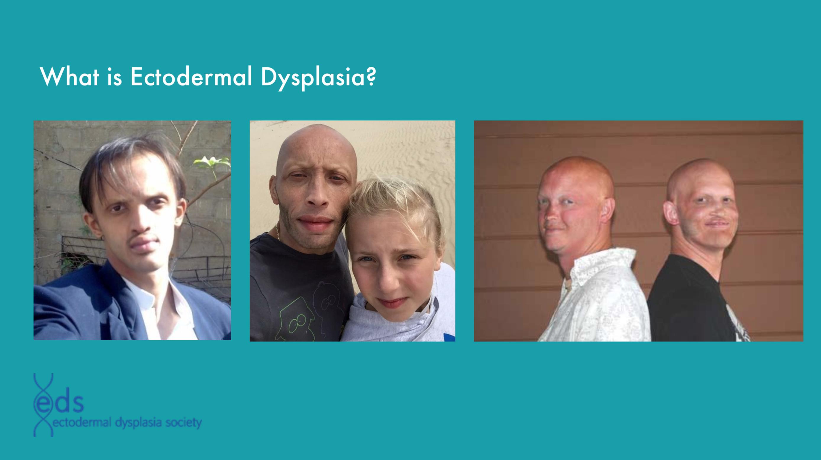 ectodermal dysplasia – Dylan Wert Graphics